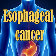 Esophageal Cancer APK