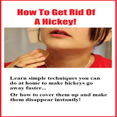 How To Get Rid Of A Hickey  Latest Version Download