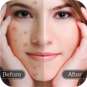 Download Face Blemish Remover - Smooth Skin & Beautify Face 1.5 APK File for Android