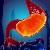 Acidity - Gas Trouble reason, symptoms, precaution